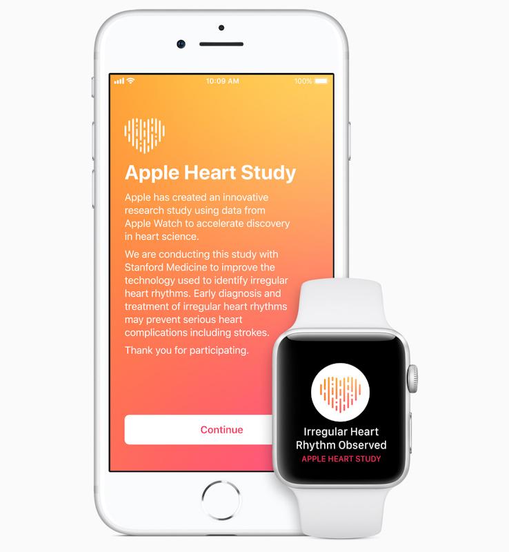 Jedna z medicínských iniciativ Applu – zjišťování nepravidelného srdečního rytmu, respektive atriální fibrilace