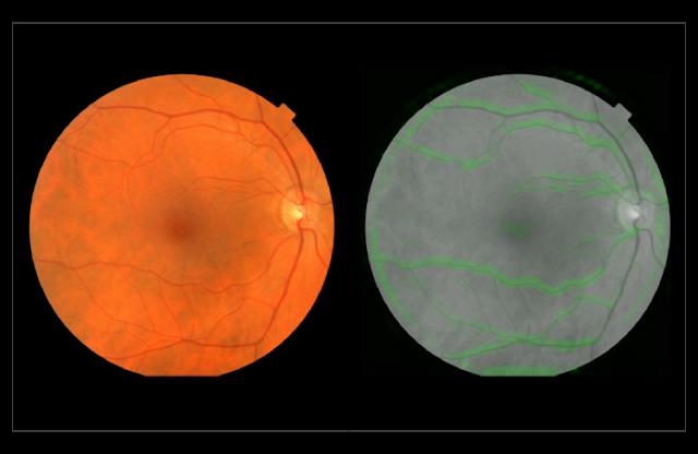 Běžný sken sítnice (nalevo) a sken pomocí softwaru Googlu, kde jsou zeleně zaznačeny cévky (napravo)