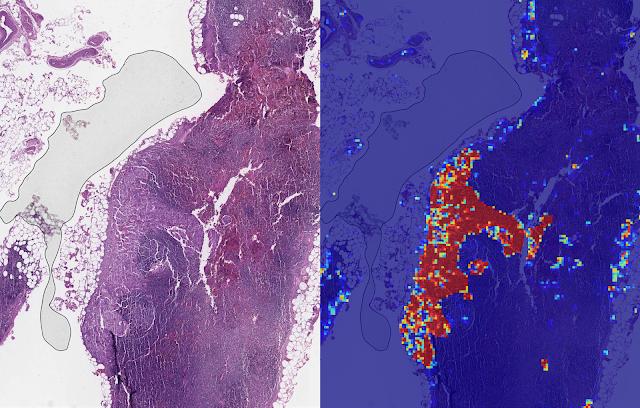 Nástroj od Googlu umí díky umělé inteligenci s 99% přesností detekovat možnou rakovinu prsu
